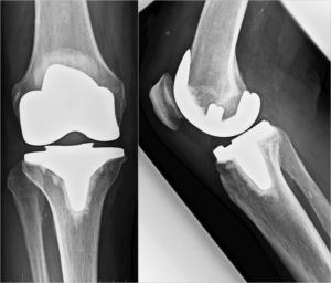 Doppelschlittenprothese - Attune