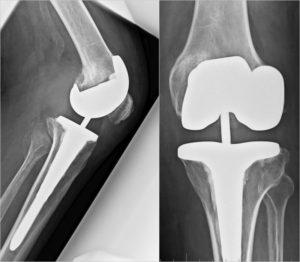 Teilgekoppelte-Knieprothese